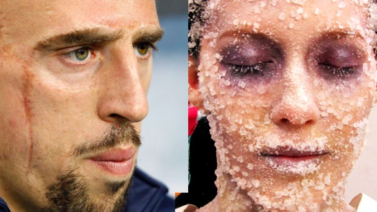 Cnn confuse franck ribery for a woman who has been frozen to death cnn confuse franck ribery for a woman who has been frozen to death voltagebd Gallery