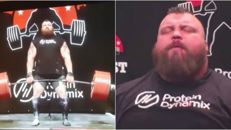 Eddie Hall's monstrous 500kg deadlift had some horrific-sounding consequences