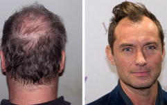 14 things a man goes through when he starts losing his hair