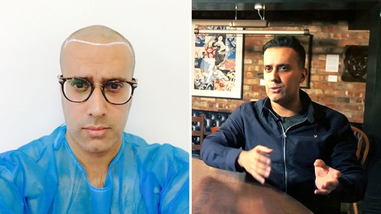 Ever wondered what it's like to have a hair transplant? These are the highs and lows of getting one done