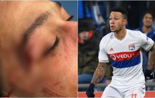 Memphis Depay shows off nasty cut picked up in dramatic win