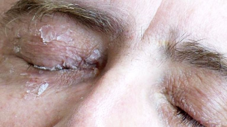 This man glued his eye shut after mistaking glue for eye drops