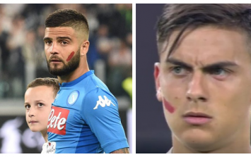 Napoli and Juventus players wear red paint on faces for heartbreaking reason