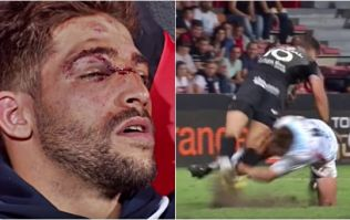 """Scrum-half has face """"rearranged"""" by brutal rugby tackle gone wrong"""