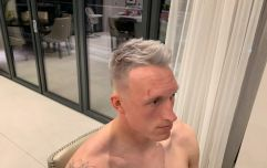Phil Jones has grey hair now and it is spectacular