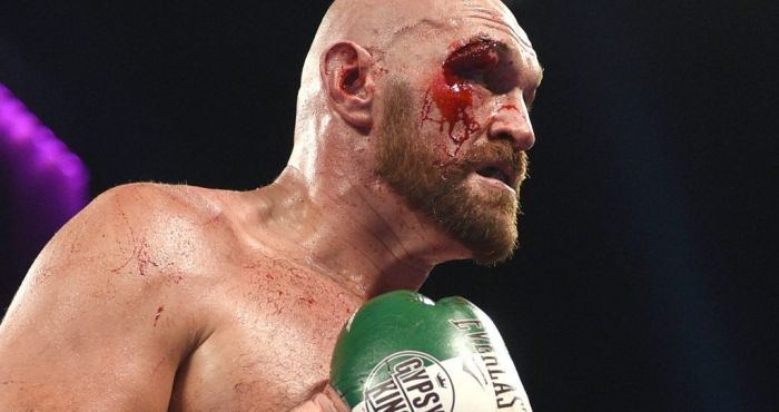 Boxing commentator Andy Clarke on Tyson Fury's cut against Otto Wallin