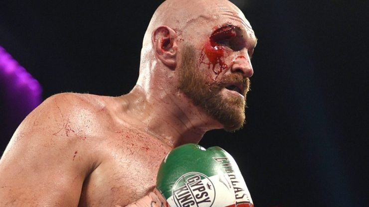 Tyson Fury's cut against Otto Wallin a wake up call ahead of Wilder rematch
