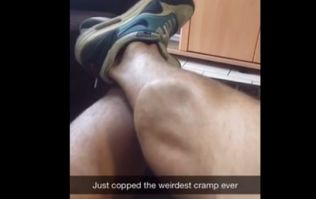 Video: Ever get a cramp in your calf? Did it look as visibly disgusting as this?