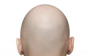 JOE BLOGS: 5 things I've learned from my year with alopecia