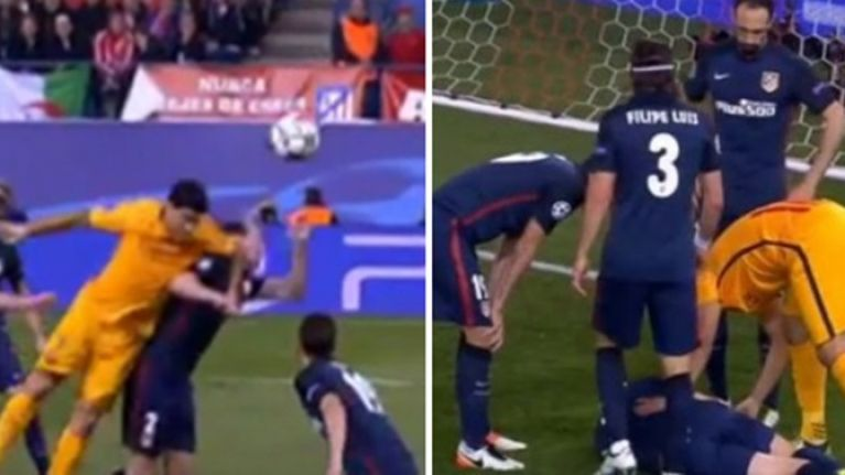 PIC: Luis Suarez left Diego Godin with a very nasty black eye during Atletico's win over Barca