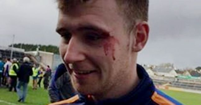 VIDEO: College hurler takes a hurl in the face and continues celebrating like a BOSS