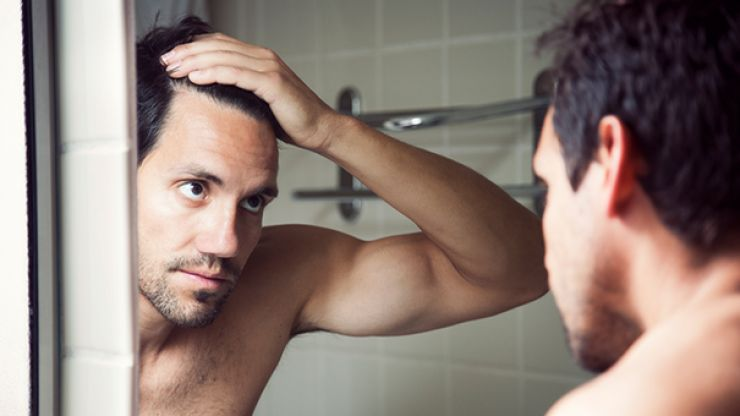 5 things to think about before getting a hair transplant