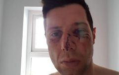Tyrone GAA release statement following investigation into Sean Cavanagh injuries