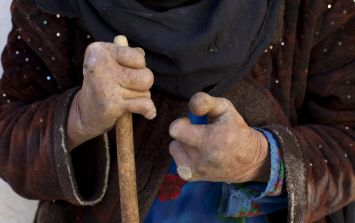 Bacteria that causes leprosy is mutating into something even more dangerous