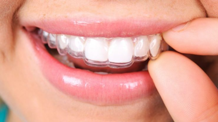 COMPETITION: Win invisible aligner dental treatment worth up to €1,799