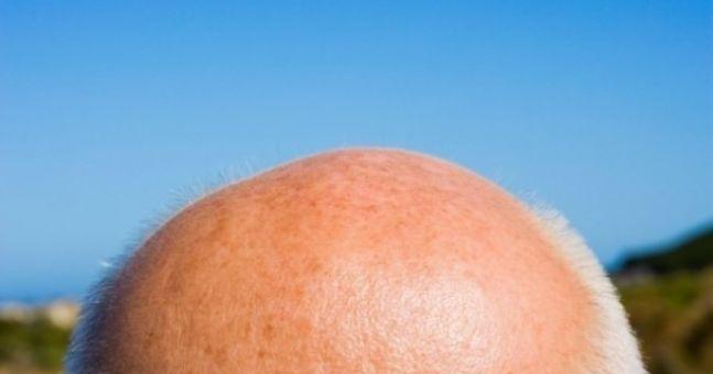 JOE visits the hair loss clinic