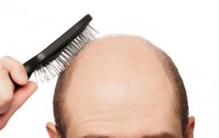 Boffins close to battling baldness