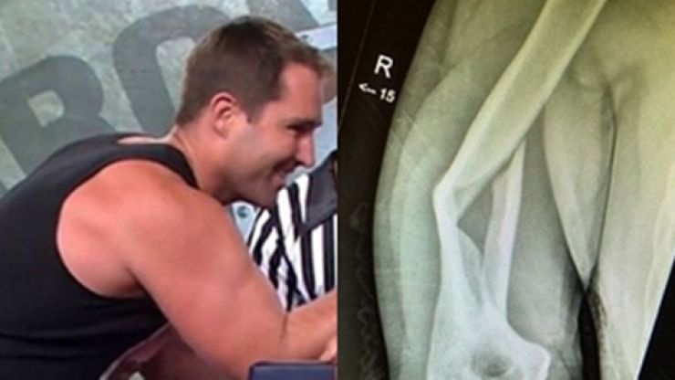 Ben Ross reveals horrifying results of snapping a bone in arm-wrestle [EXTREMELY GRAPHIC]