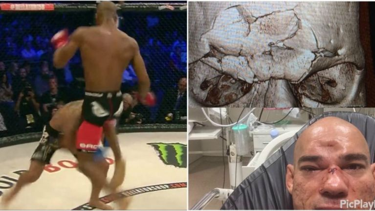 Michael Page describes the moment he landed the skull-fracturing knee on 'Cyborg' Santos