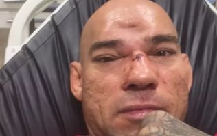 GRAPHIC: After seven-hour surgery, 'Cyborg' Santos shares photographs of his fractured skull