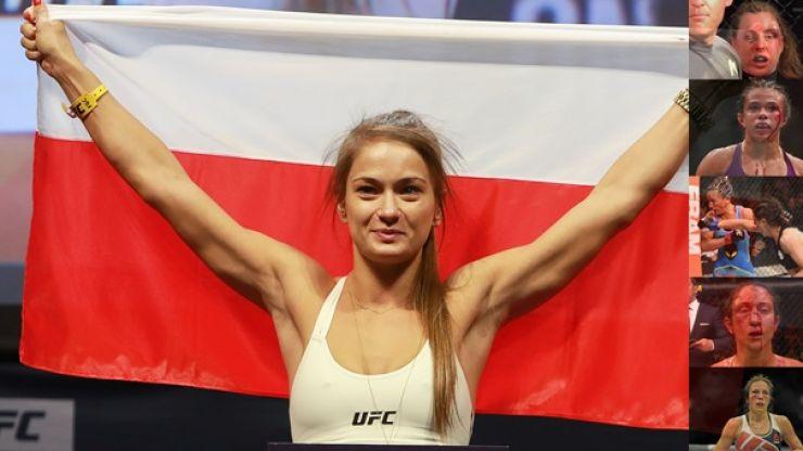 PICS: Karolina Kowalkiewicz bucks trend of Joanna Jedrzejczyk opponents as she keeps face in tact