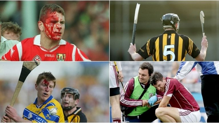Three of the most gruesome hurling injuries we've heard of    this