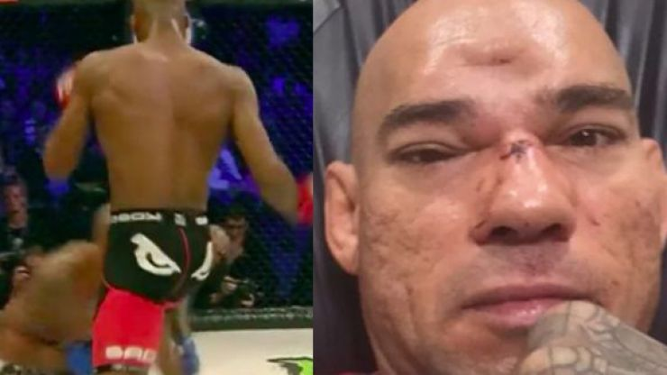 Six months after Michael Venom Page's flying knee fractured his skull, Evangelista Santos retires