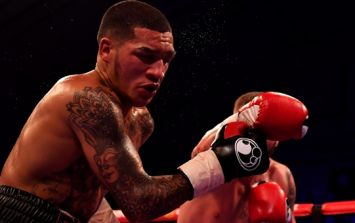 """Conor Benn's face is all kinds of messed up the morning after """"massive learning experience"""""""