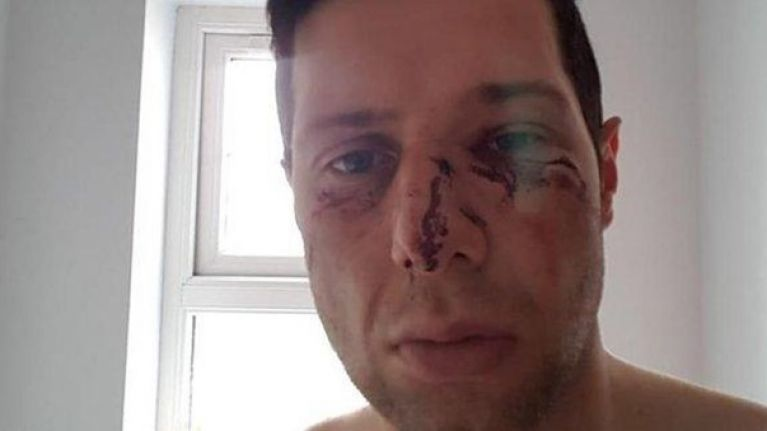 Sean Cavanagh details his struggles with concussion