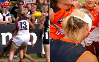 Cora Staunton left in a bad way after Aussies Rules collision