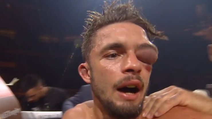 Anthony Yigit suffers brutal eye injury in defeat to Ivan Baranchyk