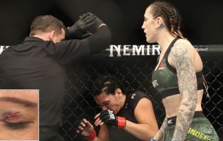 Cat Zingano shows off nasty effects of toe to her eye