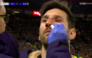 Chris Smalling breaks Lionel Messi's nose, retirement announcement expected tomorrow