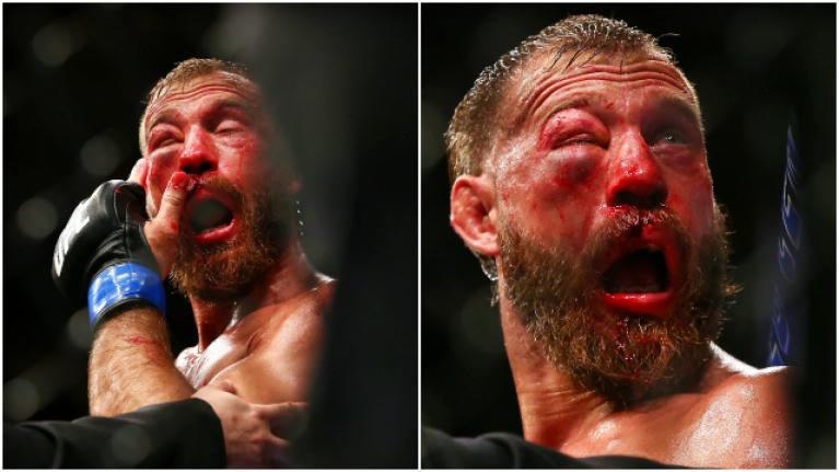 Decision to blow nose proves costly as Donald Cerrone loses classic to Tony Ferguson