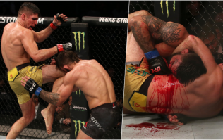 Mike Perry suffers horrific nose break after 'Fight of the Night' war
